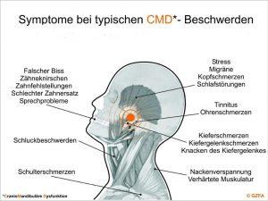 Symptome bei typischen CMD-Beschwerden